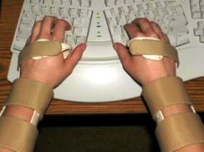 تاندونیت, تاندون, مچ دست, مچ بند, تزریق موضعی